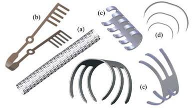 Applications of Shape Memory Alloys in the medical field ...
